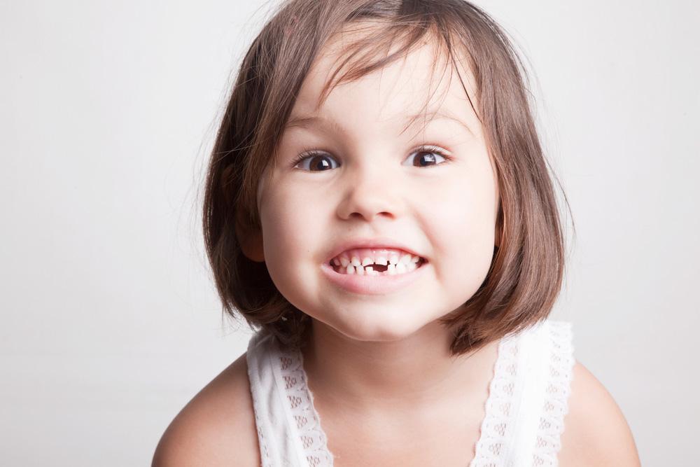 歯が抜けた幼児